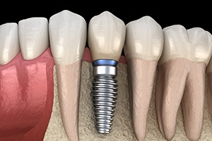 Model showing a dental implant replacing a tooth.