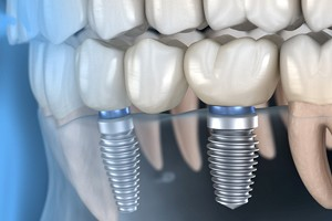 computer model of dental implant replacement teeth